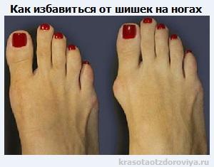 Шишки на ногах