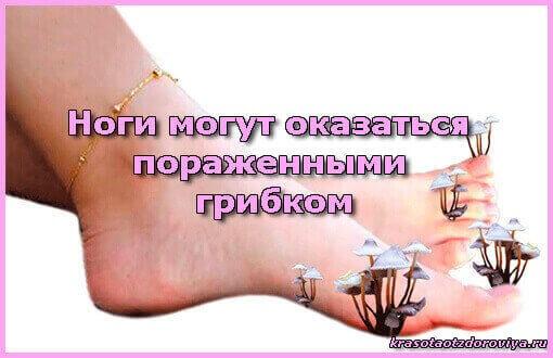 ноги поражены грибком
