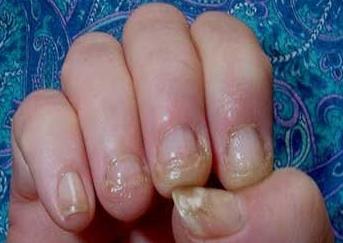 Нарощенные ногти чем вредны