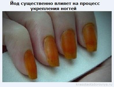 Йод для ногтей