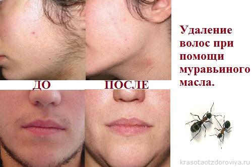Рецепт удаления волос на лице