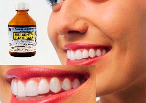 отбеливание-зубов