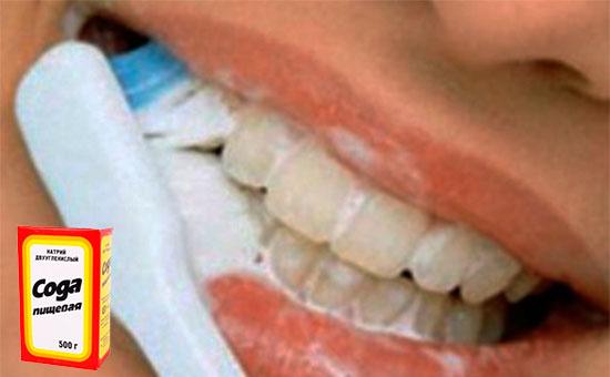 Как отбелить зубы в домашних условиях за 5 минут содой - Азбука идей