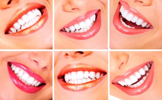 уход-за-зубами