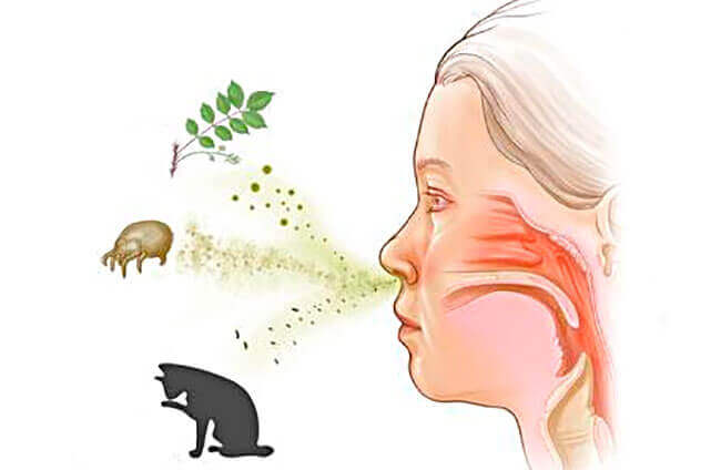 Аллергия-симптомы