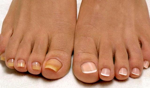 Грибок ногтей и стоп