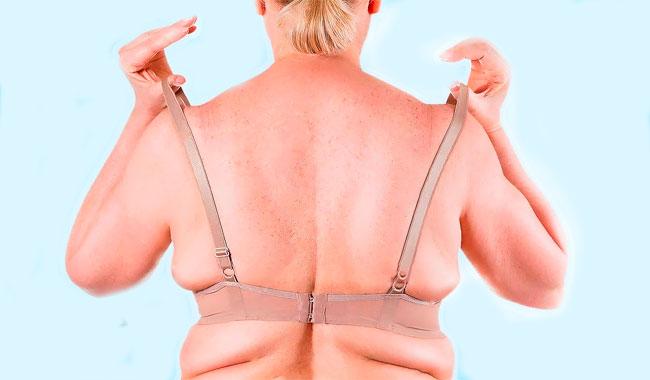 жировые складки на спине
